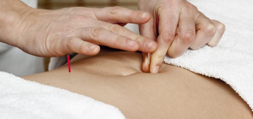 Los distintos usos de la acupuntura para la salud