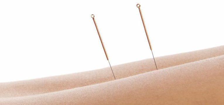 3 usos de la acupuntura